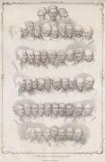 F.X. Messerschmidt: Matthias Rudolph Toma, Messerschmidts Character Heads,1839 (1993). Photographer: archive